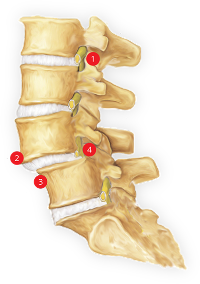 spondy listhesis This in-depth discussion about spondylolisthesis explains what causes a vertebra to slip and what the different grades (eg, grade 1 spondylolisthesis) look like.