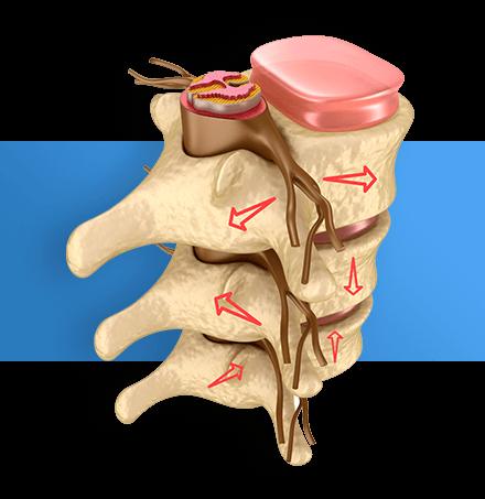 Лечение боли в спине: методы и способы лечения болей в спине